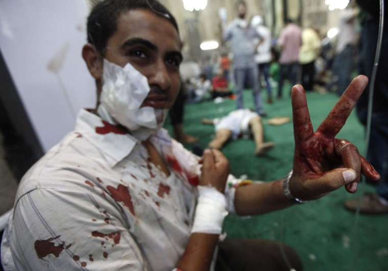 """An injured supporter of ousted Egyptian President Mohamed Morsi gestures after being treated inside a mosque in Ramses Square in Cairo, August 16, 2013. Protests by supporters of ousted Islamist President Mohamed Mursi turned violent across Egypt on Friday, with witnesses reporting four dead in central Cairo and at least 12 killed in northern cities as the Muslim Brotherhood staged a """"Day of Rage."""" (Mohamed Abd El Ghany/Reuters)"""