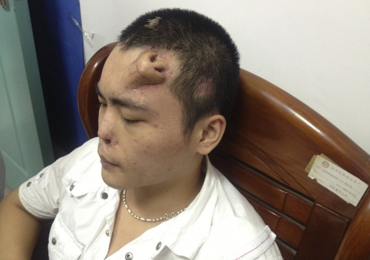 A new nose, grown by surgeons on Xiaolian's forehead, is pictured before being transplanted to replace the original nose, which is infected and deformed, at a hospital in Fuzhou, Fujian province. Xiaolian, 22, neglected his nasal trauma following a traffic accident on August, 2012. After several months, the infection had corroded the cartilage of the nose, making it impossible for surgeons to fix it leaving no alternative but to grow a new nose for replacement. The new nose is grown by placing a skin tissue expander onto Xiaolian's forehead, cutting it into the shape of a nose and planting a cartilage taken from his ribs. The surgeons said that the new nose is in good shape and the transplant surgery could be performed soon, local media reported. (Reuters)