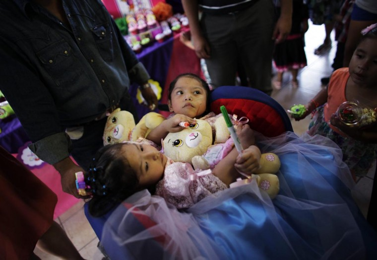 Conjoined twins Maria Guadalupe (L) and Elsa Guadalupe Sanchez hold teddy bears during their fourth birthday celebrations in Santa Catarina, on the outskirts of Monterrey September 2, 2013. The party was organized by Mexico's National System for Integral Family Development (DIF) and the local municipality in support of the twins' family, according to local media. (Daniel Becerril/Reuters)