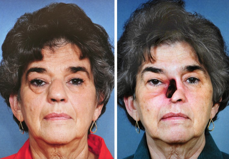 Linda Hershey is pictured on the left with a squamous cell cancer tumor in her nose and at the age of 64, right, after the cancer tumor was removed at Johns Hopkins Hospital. Hershey opted to have her nose reconstructed at Johns Hopkins Hospital rather than have a prosthetic. (Photos courtesy of Dr. Patrick J. Byrne)