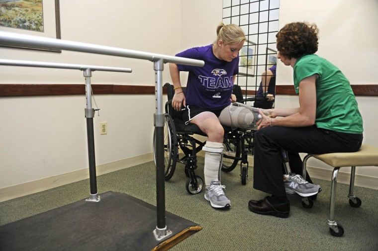 Erika Brannock tries on the new leg with the help of Angela Swindell, a certified prosthetist orthotist. (Barbara Haddock Taylor/Baltimore Sun)