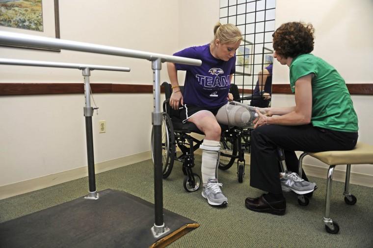 Erika Brannock tries on the new leg with the help of Angela Swindell, a certified prosthetist orthotist. (Barbara Haddock Taylor/Baltimore Sun)