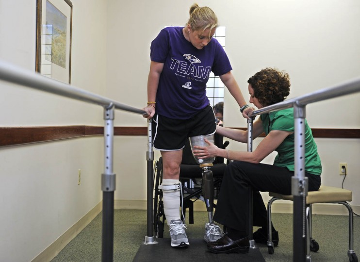 Erika Brannock is standing at the parallel bars as Angela Swindell, right, adjusts the leg. Ms. Swindell is a certified prosthetist orthotist. (Barbara Haddock Taylor/Baltimore Sun)
