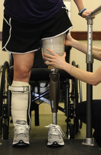 Erika Brannock stands for the first time on the new leg as prosthetist Angela Swindell makes adjustments. (Barbara Haddock Taylor/Baltimore Sun)