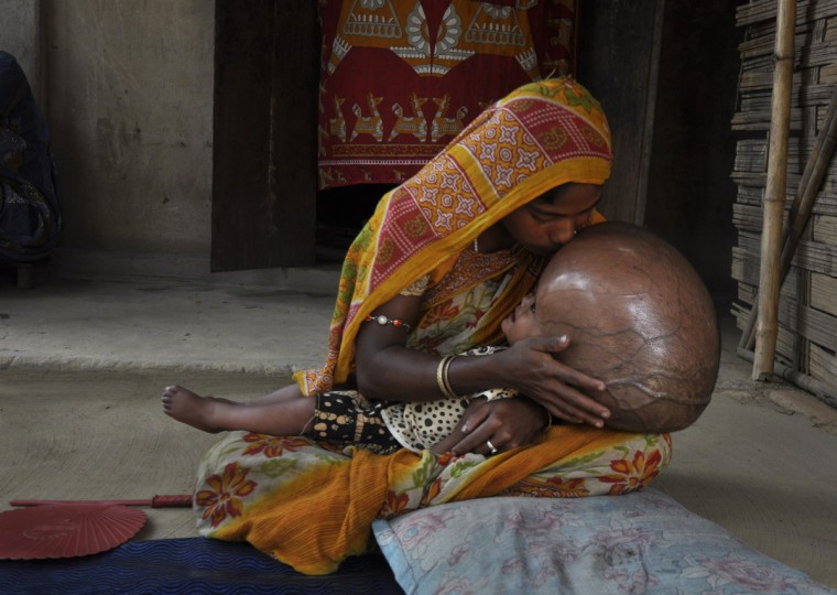 """Fatima Khatun 25, kisses the head of her eighteen month old daughter, Roona Begum, suffering from Hydrocephalus, in which cerebrospinal fluid builds up in the brain, at their hut in Jirania village on the outskirts of Agartala, the capital of northeastern state of Tripura on April 13, 2013. Her father, Abdul Rahman, 18, who lives in a mud hut with his family, told AFP he prays for """"a miracle"""" that will save his only child. Doctors told him to go to a specialist hospital in a big city such as Kolkata in eastern India to get medical help but Rahman, who earns 150 rupees ($2.75) a day working in the brick plant, said he does not have the money to take her. (Arindam Dey/Getty Images)"""