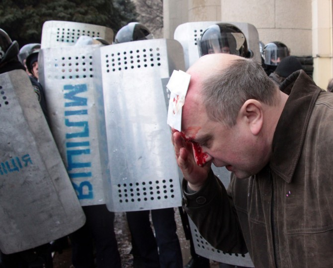 A wounded man touches his forehead after clashes between Pro-Russia activists and Maidan supporters in Kharkiv on March 1, 2014. Dozens were hurt on March 1, 2014 when a pro-Russia protest in Ukraine's eastern city of Kharkiv turned violent, with demonstrators trying to storm the local government building. Some 20,000 joined the protest against Kiev's new pro-West government after the ouster of Kremlin-backed leader Viktor Yanukovych, and later around 300 launched the assault on the government building. Stones and stun grenades were thrown though it was unclear by whom. (Sergey Bobok/AFP/Getty Images)
