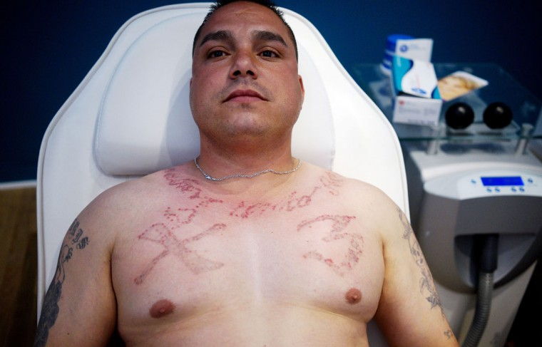 """Vincente Montano relaxes between laser treatments to remove the """"X 3"""" tattoo on his chest showing allegiance to the Mexican mafia at the """"What Were You Inking"""" clinic in downtown Denver. (REUTERS/Rick Wilking)"""