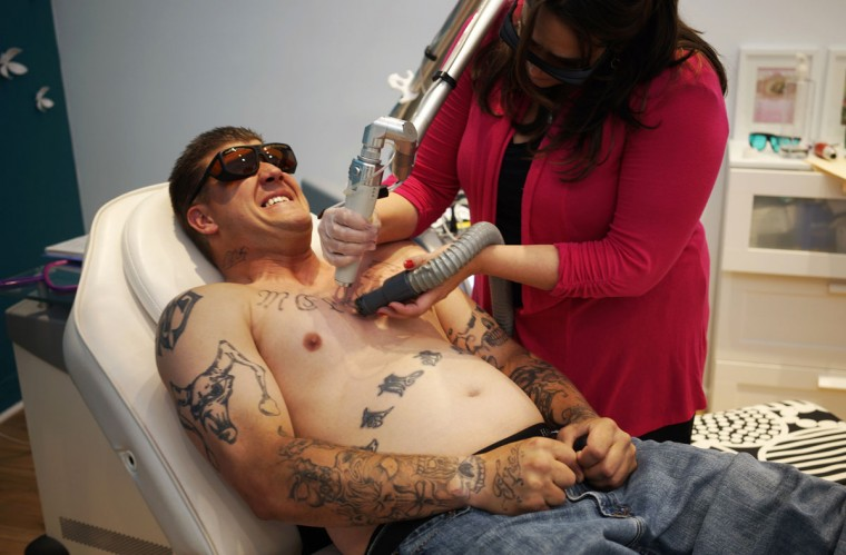 "Chad Lambert reacts as he has a tattoo of his ex-wife's name removed from his chest with a laser by Jill France at her ""What Were You Inking"" clinic in downtown Denver. (REUTERS/Rick Wilking)"