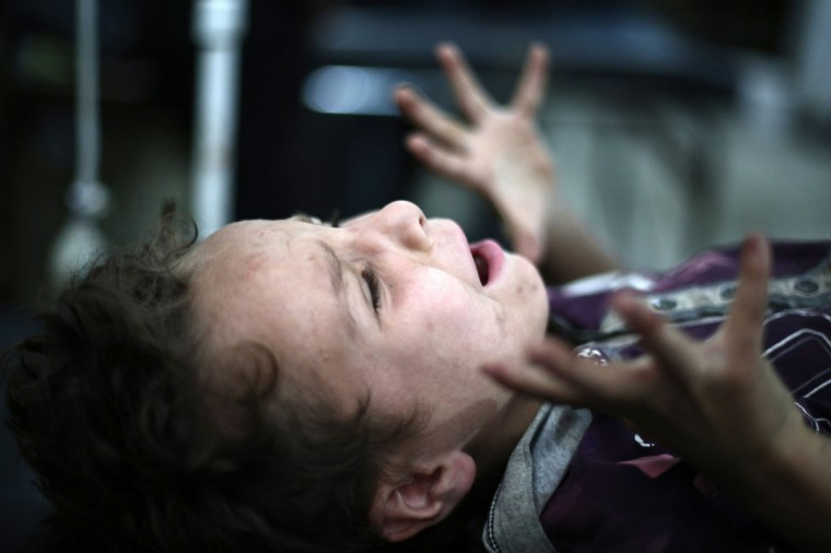 A boy screams as a doctor removes shrapnel from his leg in the rebel-held town of Douma, northeast of the capital Damascus on July 3, 2014. Rebels from northern and eastern Syria threatened to lay down their arms in a week if the country's exiled opposition does not help them fight the jihadist Islamic State (ABD Doumany/AFP/Getty Images)