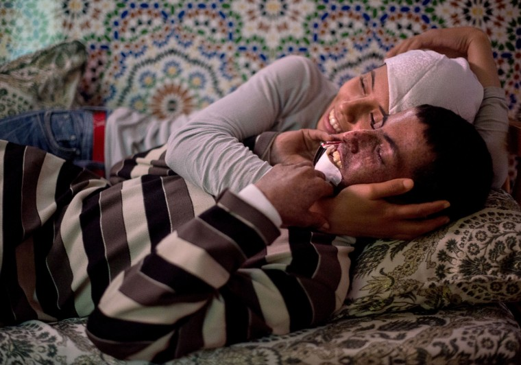 """From left, Wafae Hamouti hugs her brother, Driss Hamouti, 21, both of Tifelt, Morocco, as they watch a late afternoon movie. Driss' lip is suffering with a tumor as a result from Xeroderma Pigmentosum, or XP. XP is a rare genetic condition making the skin and eyes sensitive to ultraviolet light. """"Sometimes he hates himself, but then he forces himself to accept that God made him this way for a reason,Ó DrissÕ sister, Wafae, said. Rachel Woolf/Baltimore Sun"""