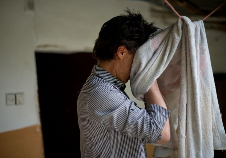 """Mohamed El-Kotbi, 17, of the Province of Ouezzane, Morocco, dries his face off after washing it in late morning. People at his school have sometimes called him """"burn face"""". Rachel Woolf/Baltimore Sun"""