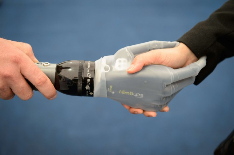 A Virtu-Limb artificial hand is displayed on one of the exhibition stands at Celtic Manor Resort, ahead of the NATO Summit 2014. Running over the 4th and 5th of September, the NATO members will gather to discuss issues such as the crisis in Ukraine and the threat of the Islamic State (IS). (Leon Neal/Getty Images)