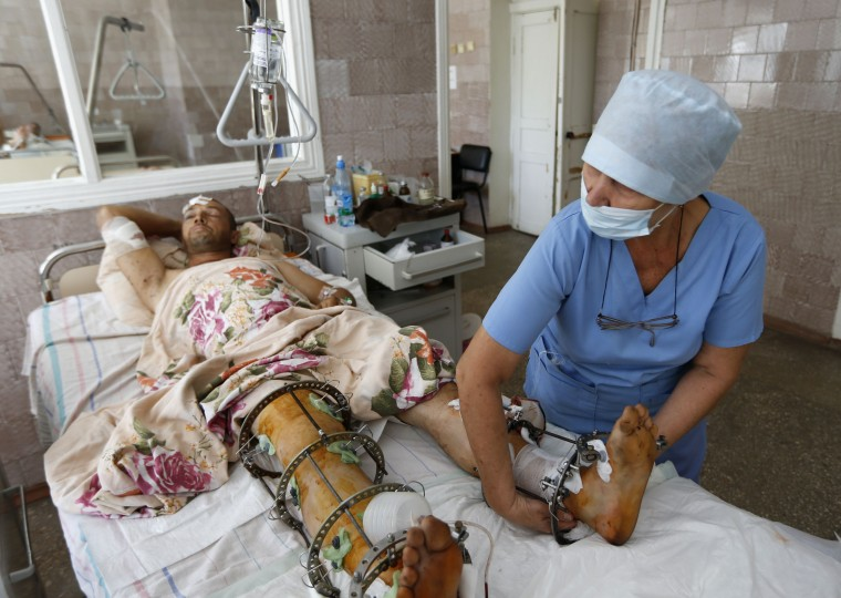 An injured man receives treatment at a hospital in the southern coastal town of Mariupol. A ceasefire struck between Ukrainian forces and pro-Russian separatists in eastern Ukraine was largely holding on Saturday, though residents and combatants said it was likely to prove a brief interlude before renewed fighting. (Vasily Fedosenko/Reuters)