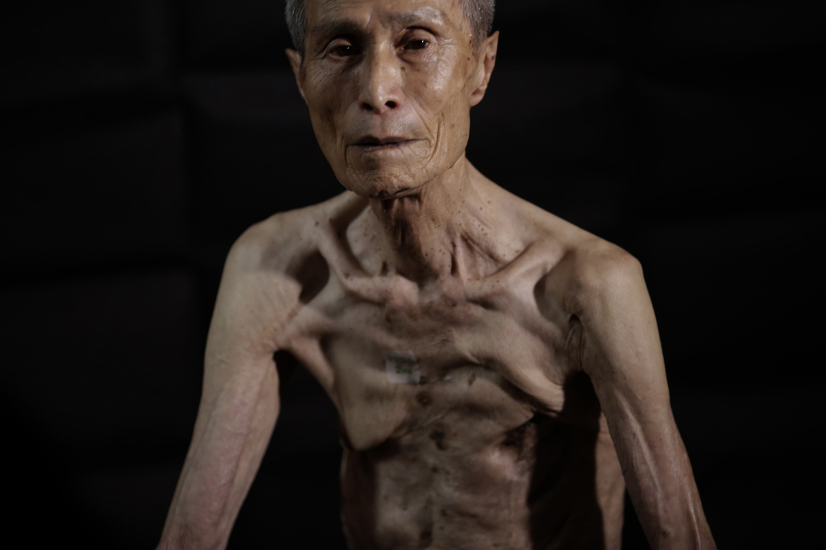 Nagasaki: One man's scars