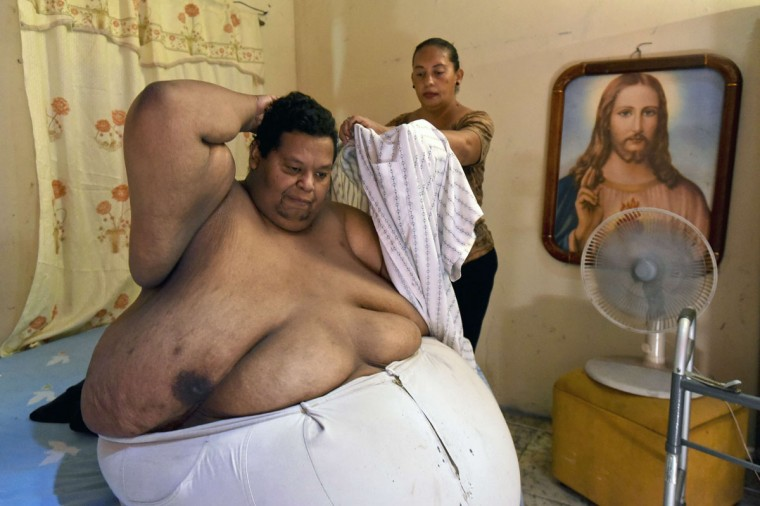Oscar Vasquez Morales, 44, gets helps putting a shirt on at his home on March 19, 2016, in Palmira, Colombia. (LUIS ROBAYO/AFP/Getty Images)