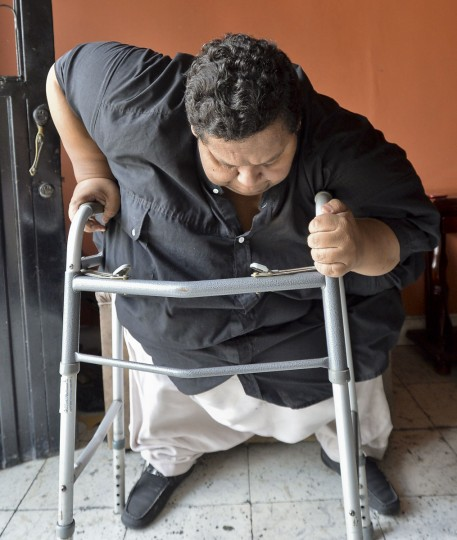 Oscar Vasquez Morales stands up at his home on March 19, 2016, in Palmira, Colombia. (LUIS ROBAYO/AFP/Getty Images)