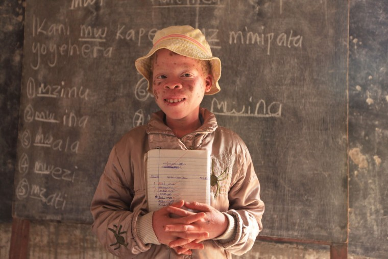 """Mina Godfrey, 13, is seen in class at her school in this Tuesday, May, 24, 2016 photo in Machinga. Godfrey says she was placed first in her recent school exams and hopes one day to become a lawyer. But this comes after she survived abduction from her bed at night by her uncle. At least 18 Albino people have been killed in Malawi in a """"steep upsurge in killings"""" since November 2014, and five others have been abducted and remain missing, a new Amnesty International report released Tuesday says. (AP Photo/Tsvangirayi Mukwazhi)"""