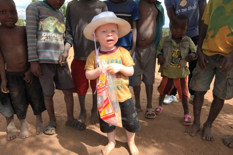 """Cassim Jaffalie, 3, is seen with his friends at their family home in this Monday, May, 23, 2016 photo in Machinga. His father, Razik Jaffalie, gave up his work as a bicycle taxi operator to protect his son in a country where there has been an increase in albinism attacks. At least 18 Albino people have been killed in Malawi in a """"steep upsurge in killings"""" since November 2014, and five others have been abducted and remain missing, a new Amnesty International report released Tuesday, June 7, 2016 says. (AP Photo/Tsvangirayi Mukwazhi)"""
