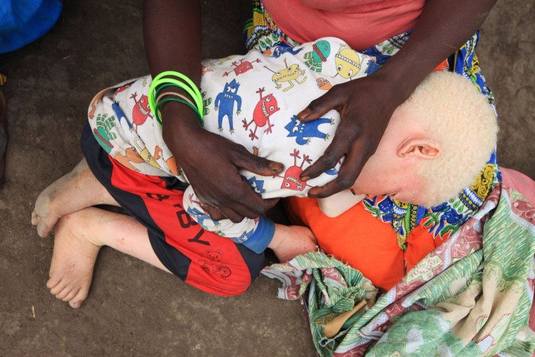 """Edna Cedrick, 26, left, holds her surviving albino son after his twin brother, who also had albinism, was snatched from her arms in a violent struggle. Cedrick says she is haunted daily by images of the decapitated head of her 9-year-old son. At least 18 Albino people have been killed in Malawi in a """"steep upsurge in killings"""" since November 2014, and five others have been abducted and remain missing, a new Amnesty International report released Tuesday says. (AP Photo/Tsvangirayi Mukwazhi)"""