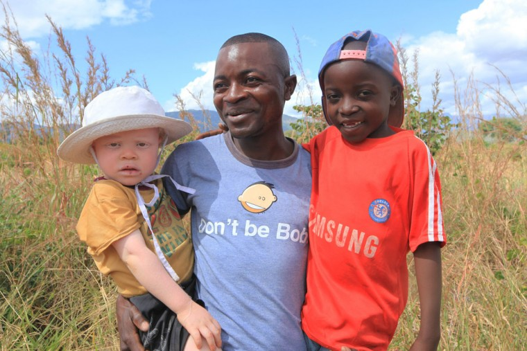 """Razik Jaffalie carries his two sons on May, 23, 2016 in Machinga. Jaffalie gave up his work as a bicycle taxi operator to protect his 3-year-old albino son, Cassim, left, in a country where there has been an increase in albinism attacks. At least 18 Albino people have been killed in Malawi in a """"steep upsurge in killings"""" since November 2014, and five others have been abducted and remain missing, a new Amnesty International report released Tuesday June 7, 2016 says. (AP Photo/Tsvangirayi Mukwazhi)"""