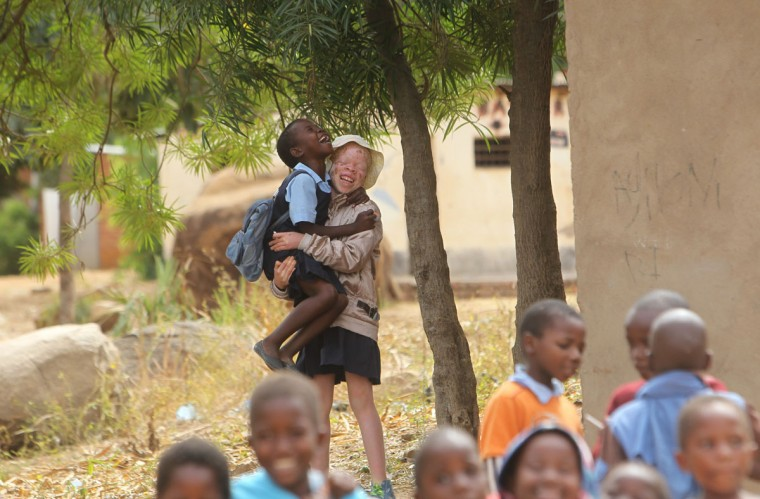 """Mina Godfrey, 13, plays with her friends at her school in this Tuesday, May, 24, 2016 photo in Machinga. Godfrey says she was placed first in her recent school exams and hopes one day to become a lawyer. But this comes after she survived abduction from her bed at night by her uncle. At least 18 Albino people have been killed in Malawi in a """"steep upsurge in killings"""" since November 2014, and five others have been abducted and remain missing, a new Amnesty International report released Tuesday says. (AP Photo/Tsvangirayi Mukwazhi)"""