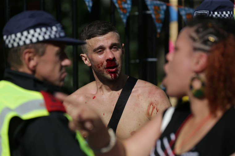 A man with a bloodied face speaks to police on the second day of the Notting Hill Carnival in west London on August 29, 2016. Nearly one million people are expected by the organizers Sunday and Monday in the streets of west London's Notting Hill to celebrate Caribbean culture at a carnival considered the largest street demonstration in Europe. (Daniel Leal-Olivas/AFP/Getty Images)