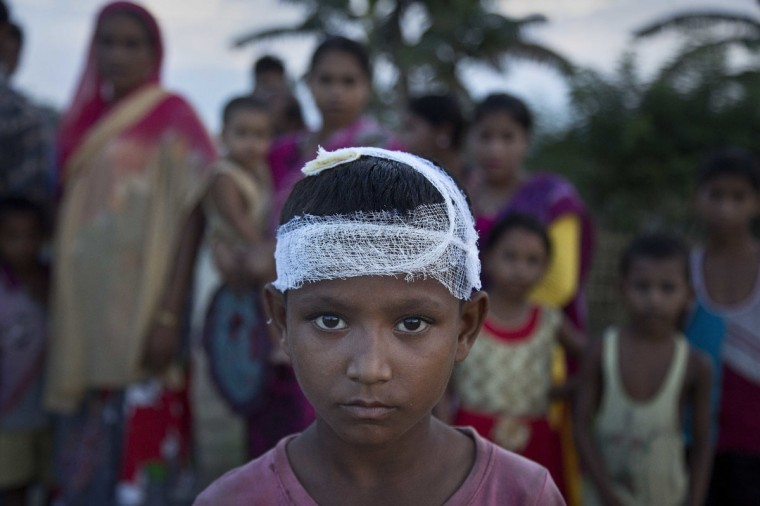 Ainul Haque, 7, who was injured on the head in police baton charge at Bandardubi village on the periphery of the Kaziranga National Park, northeastern Assam state, India, Monday, Sept. 19, 2016. Authorities ordered the demolition of around 300 houses in three villages to evict people living on the periphery of the rhino sanctuary to stop rampant poaching of the rare animal, a top police official said. Two people were killed and several others were injured Monday when villagers clashed with police while protesting the demolition of their homes. (AP Photo/Anupam Nath)