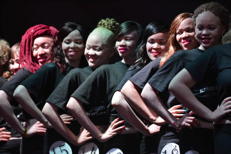 Contestants pose on stage during a pageant hosted by the Albinism Society of Kenya in Nairobi on October 21, 2016. In many parts of Africa albinos are stigmatized or hunted for their body parts, but for one night in Kenya those with the condition took to the catwalk to show off their unique beauty. Billed by organizers as the first pageant of its kind, young albino men and women competed for the title of Miss and Mr Albinism Kenya. (AFP PHOTO / TONY KARUMBA)