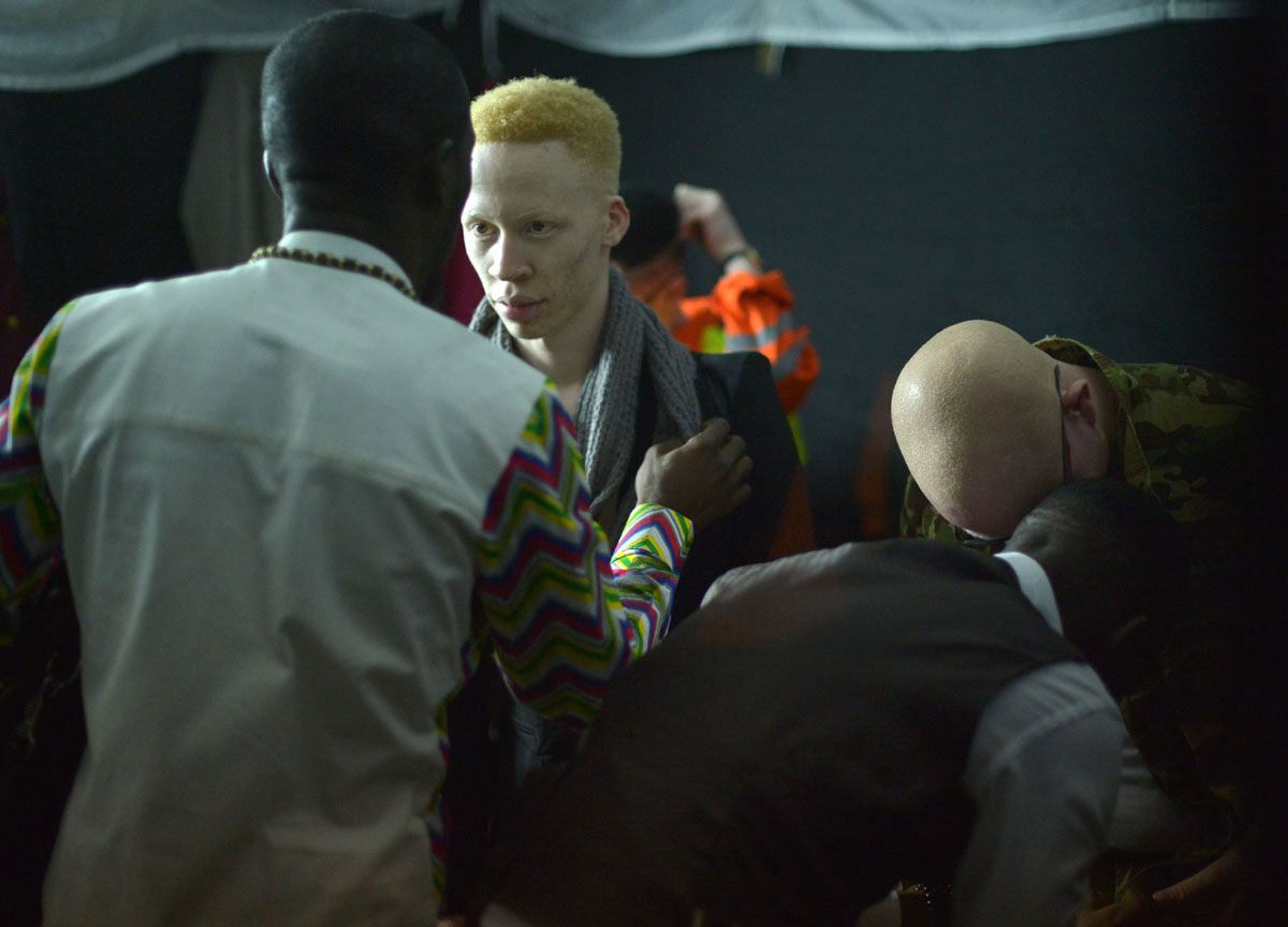 Albino beauty pageant in Kenya