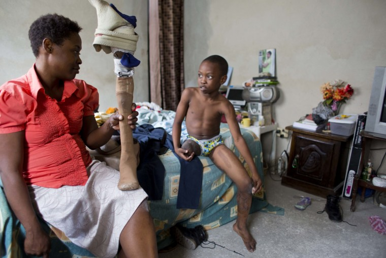 In this Jan. 10, 2017 photo, Judeley Hans Debel chats after school with his mother Nerlande Jean Philippe who holds his prosthetic leg, at their home in Petion-Ville, Haiti. The single, unemployed mother struggles to support him and has to do her best maintaining his battered prosthetic leg as he grows because she can't afford a new one. (AP Photo/Dieu Nalio Chery)