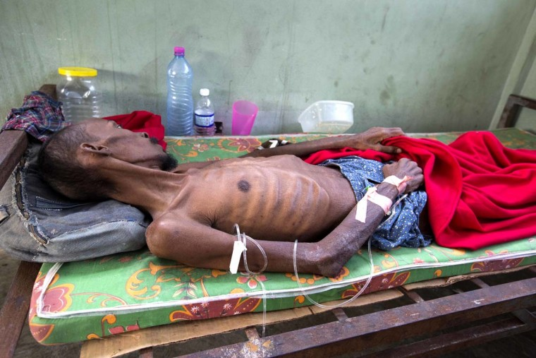 In this Feb. 13, 2017 photo, a prisoner, too weak to stand, lies in the prison infirmary at the National Penitentiary in downtown Port-au-Prince, Haiti. Haitian prosecutors and rights activists are sounding an alarm about collapsing conditions at the impoverished country's prisons as malnutrition from acute food shortages and a slew of preventable illnesses are leading to an upsurge of inmate deaths. (AP Photo/Dieu Nalio Chery)