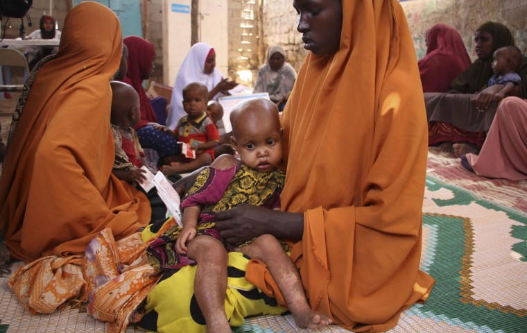 In this photo taken Saturday, March 25, 2017, a Somali woman holds her child Dahabo Sheikh Mumin, 1, as they attend a health center in Baidoa, Somalia. Somalia's drought is threatening 3 million lives according to the U.N. and in recent months aid agencies have been scaling up their efforts but say more support is urgently needed to prevent the crisis from worsening. (AP Photo/Farah Abdi Warsameh)