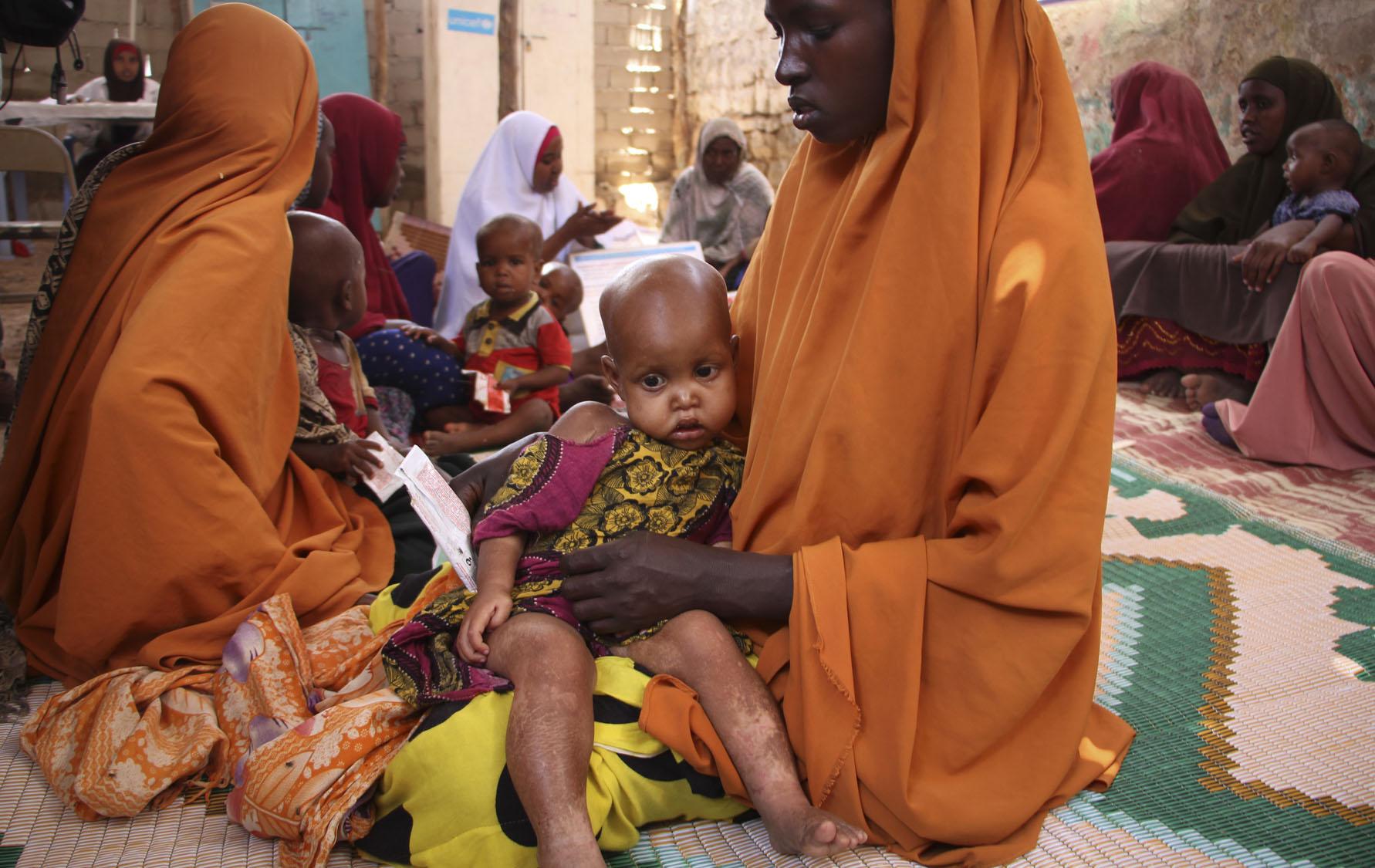 Drought in Somalia threatens 3 million