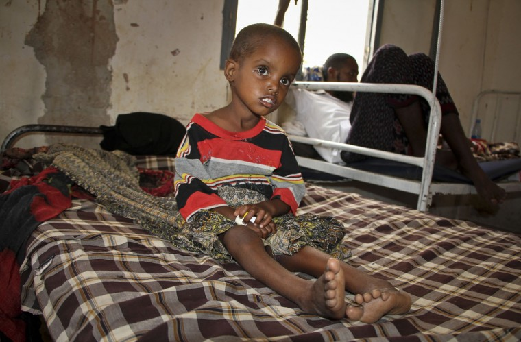 In this photo taken Saturday, March 25, 2017, a malnourished child sits in a children's hospital in Baidoa, Somalia. Somalia's drought is threatening 3 million lives according to the U.N. and in recent months aid agencies have been scaling up their efforts but say more support is urgently needed to prevent the crisis from worsening. (AP Photo/Farah Abdi Warsameh)