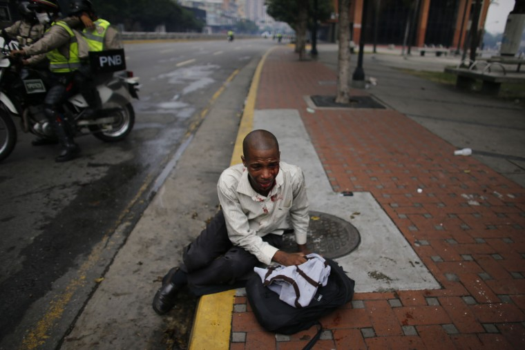 A man injured during protests demanding the resignation of Presiden Nicolas Maduro sits in the street in Caracas, Venezuela, Thursday, April 20, 2017. Tens of thousands of protesters asking for the resignation of President Nicolas Maduro flooded the streets again Thursday, one day after three people were killed and hundreds arrested in the biggest anti-government demonstrations in years. (AP Photo/Ariana Cubillos)
